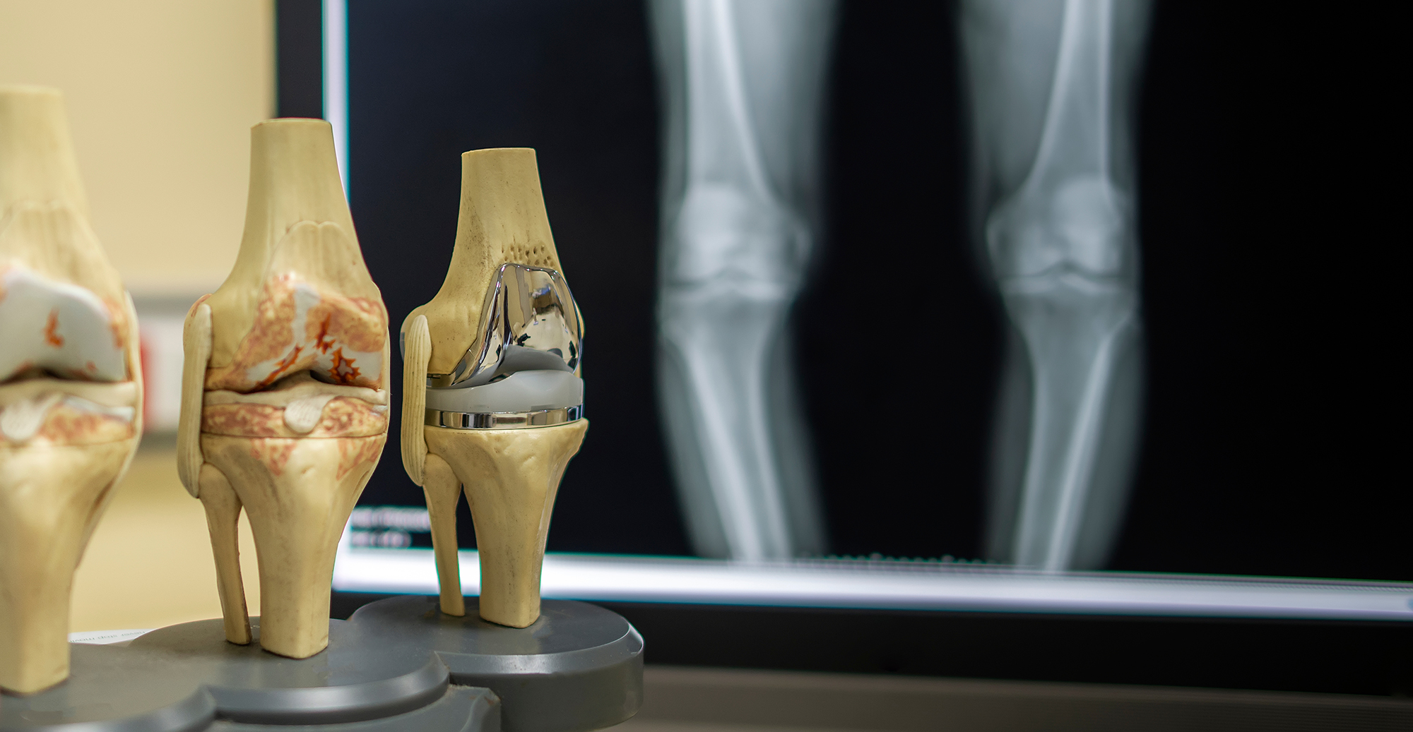 Total Knee Replacement Surgery in India
